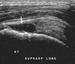 Shoulder rotator cuff tear ultrasound