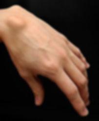 250px-Ganglion-cyst.jpg