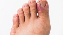 Do you have an ingrown toenail?