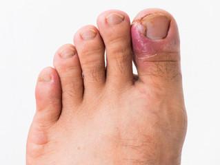 Do you have an ingrown toenail?