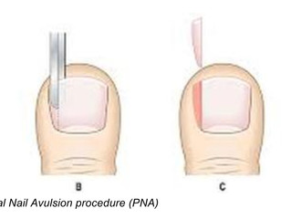 What does a nail surgery involve?