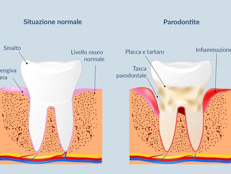 La parodontite - Diagnosi e cura.