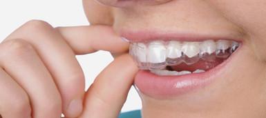 Quanto-costano-le-mascherine-per-raddrizzare-i-denti.jpg
