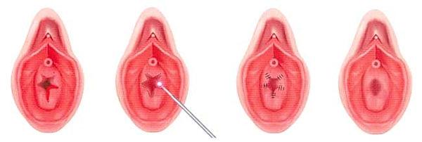 himenoplasti hymenoplasti gyn esthetic.j