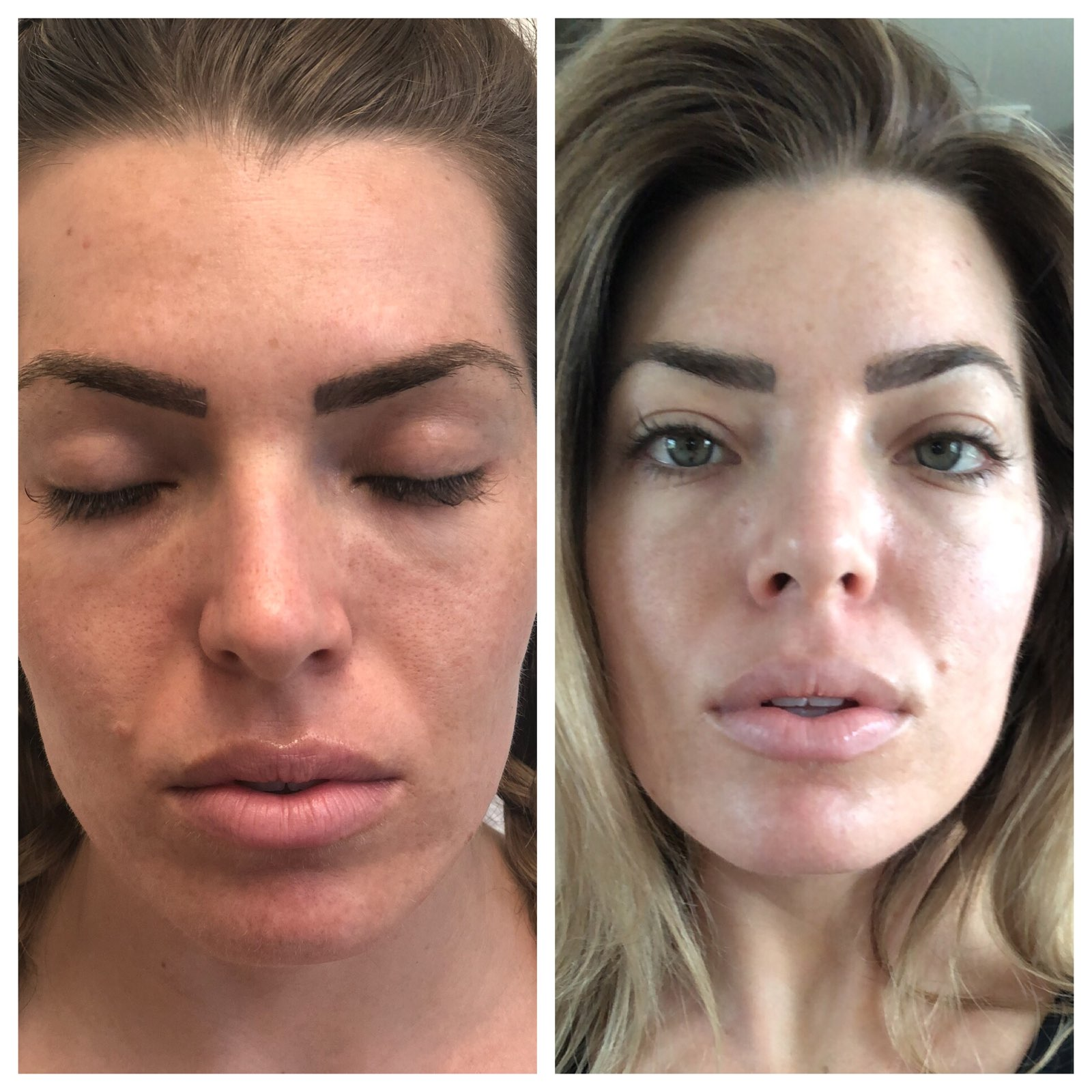 vipeelbefore and after 1