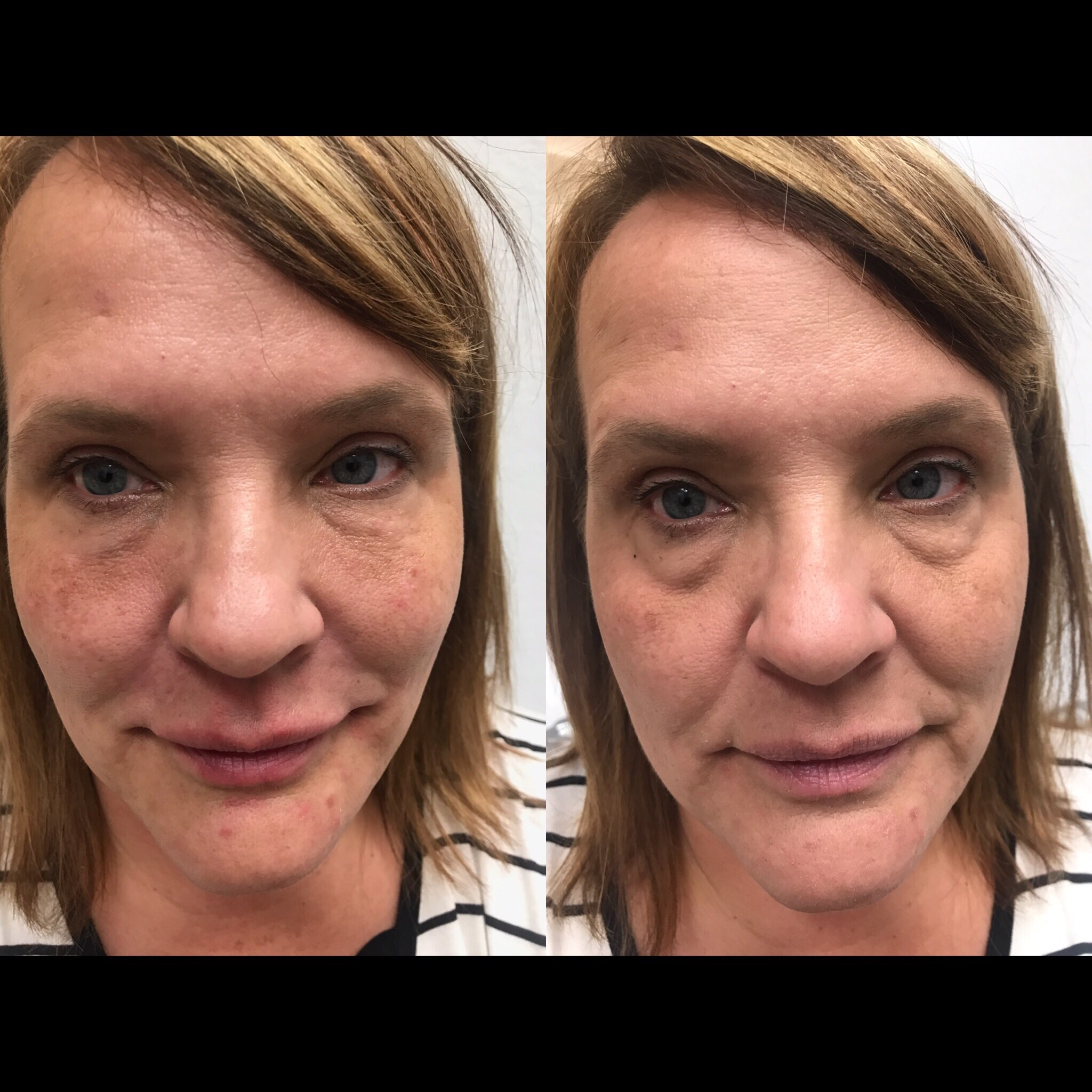 before and after tear trough filler-