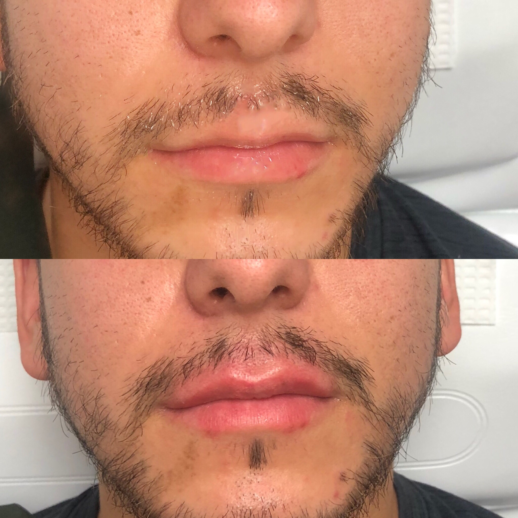 Men's Lip Filler