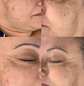 After 1 BBGLOW Treatment