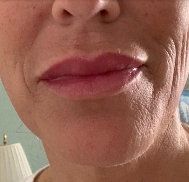 Juvederm Lips after 1 syringe