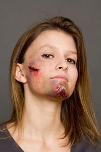 bruises SFX makeup