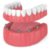 implant retained denture