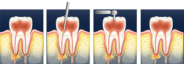 root canal-01.jpg