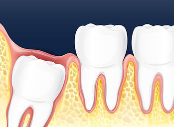 wisdom tooth-01.jpg