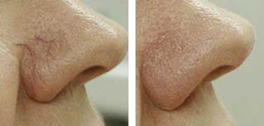 spider vein removal on nose