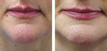 Laser treatment results for cherry angiomas below mouth