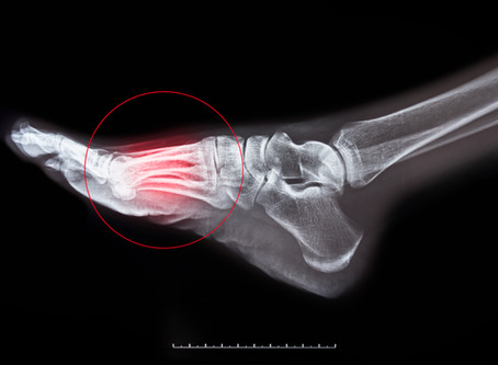 Is Your Foot Fracture an Early Sign of Osteoporosis?