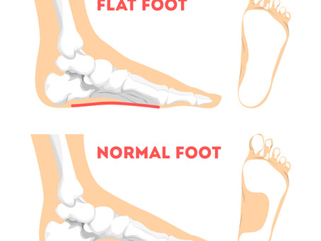 Don't Ignore Flat Feet