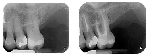 Radiografia Caso 2