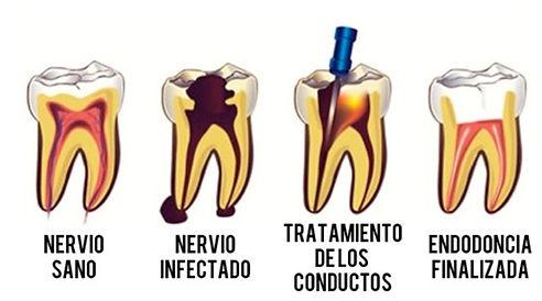 Fases Endodoncia