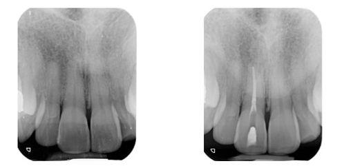 Radiografia Caso 3
