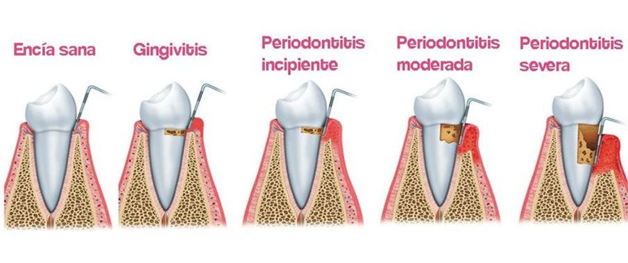 Fases Periodoncia