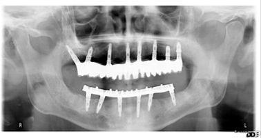 Implantes Caso 5.1