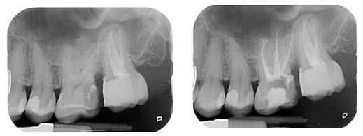 Radiografia Caso 1