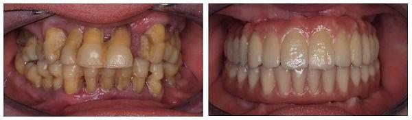 Implantes Caso 5