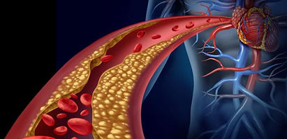 Arteriosclerosis-and-infarc_1.jpg