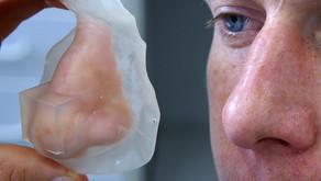 Digital Tech in Facial Prosthetics