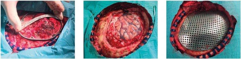 cranioplasty.jpg