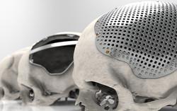 stage cranioplasty low.jpg