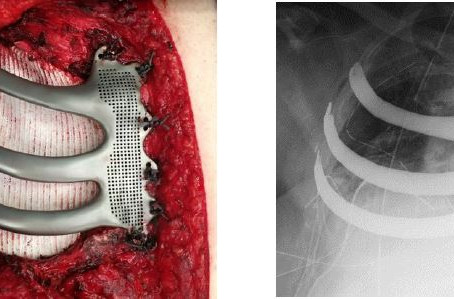 3D Printing for Chest Wall Reconstruction