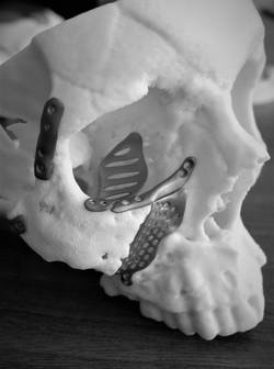 skull implant.jpg