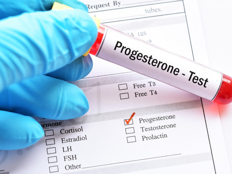 Supporting Healthy Progesterone Levels
