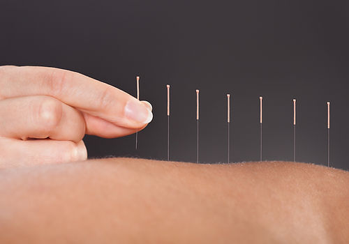 Physio On Acupuncture