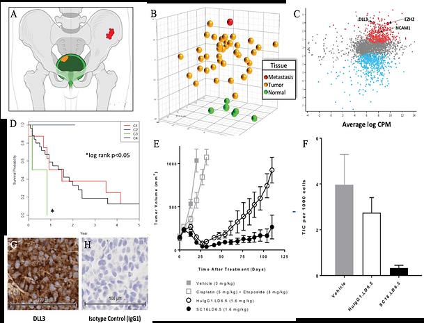 Molecular profiling of Neuroendocrine:Sm