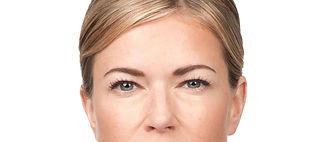 2 Botox After.jpeg
