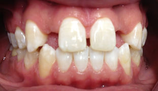 smile makeover dentist invisalign