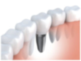 DentalImplants_ThinkstockPhotos-49361199