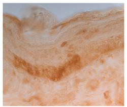 in vivo enhancer screening
