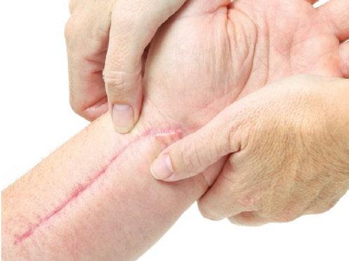Massage des tissus cicatriciels