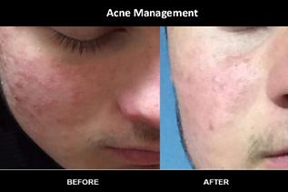 acne management.png