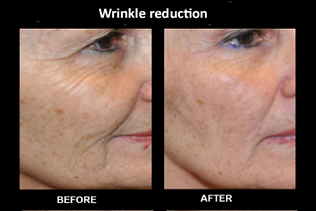 winkle reduction.png