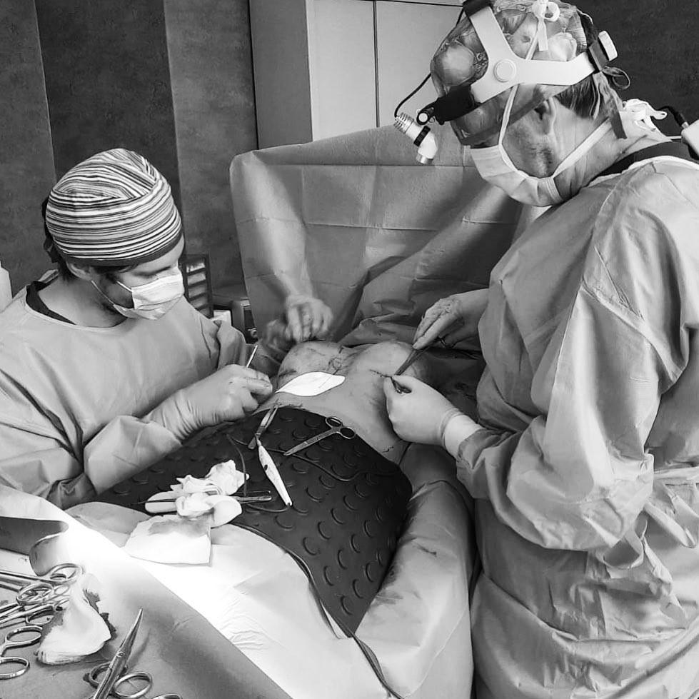 mastoplastica additiva dual plane scarless sutura cicatrici