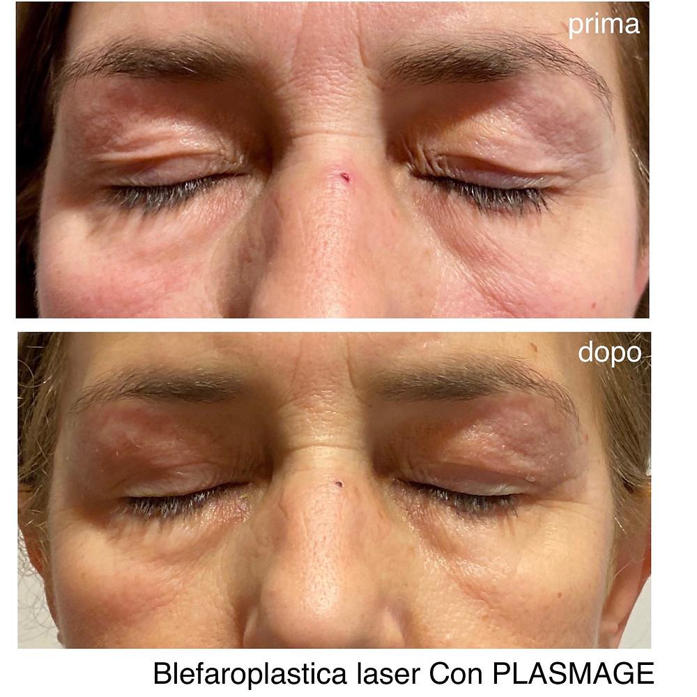 Blefaroplastica laser con Plasmage milano como