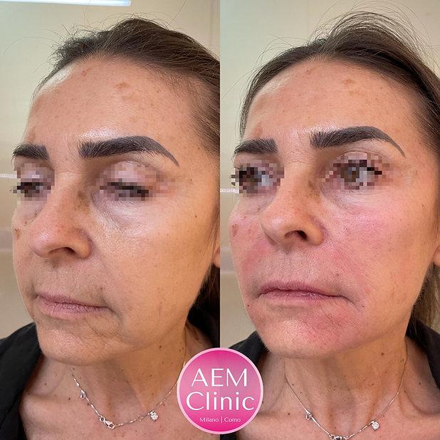 filler full face acido ialuronico