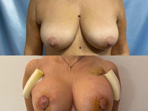 Lifting del seno: la mastopessi