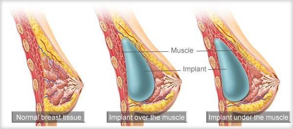 mastoplastica additiva dual plane milano como protesi seno