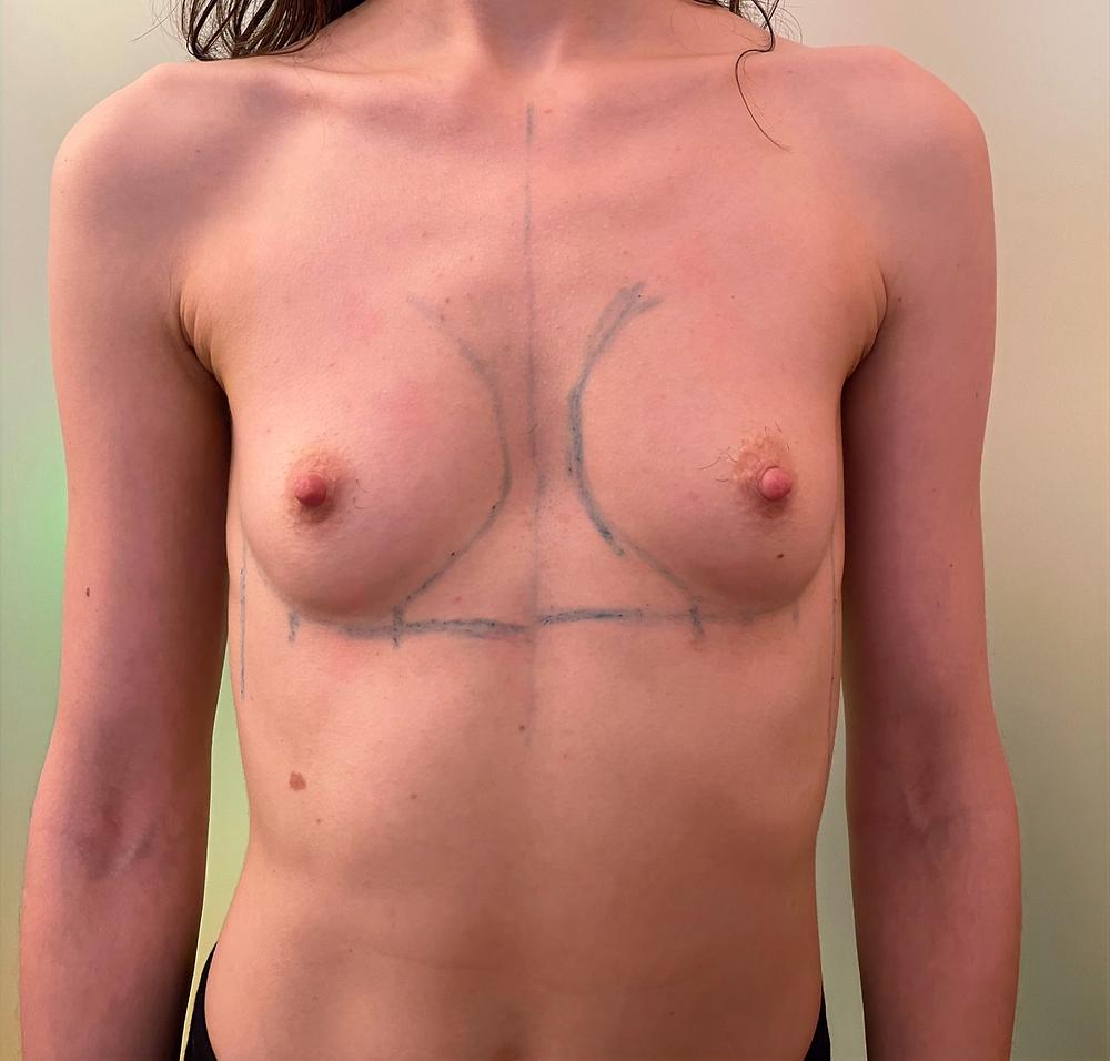 mastoplastica additiva milano como protesi seno